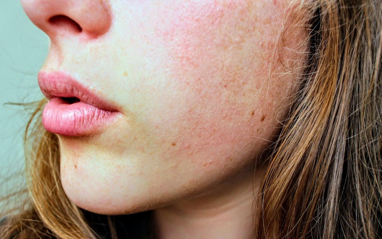 Het verschil tussen een droge en vochtarme huid